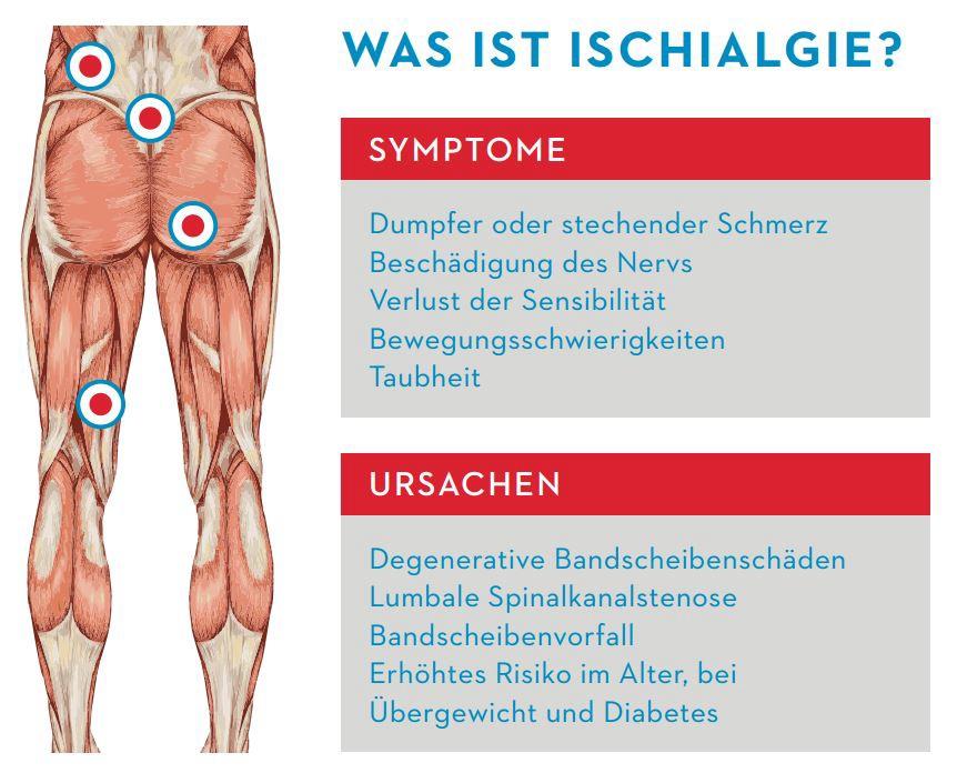 Infografik Was ist Ischialgie