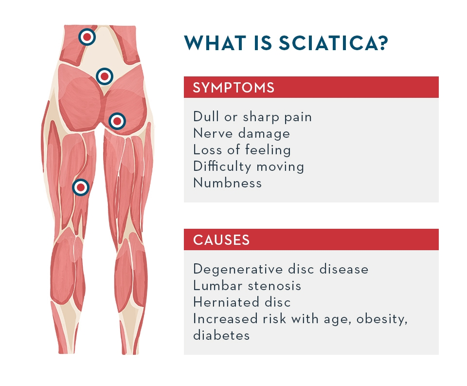 sciatica symptoms causes illustration medical holmes place
